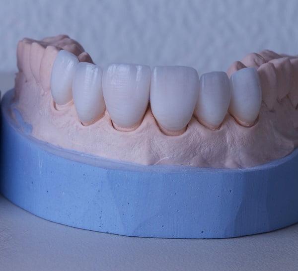 Chi phí bọc răng sứ toàn sứ