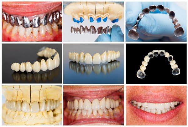 Răng sứ kim loại thường (Ni – Cr)