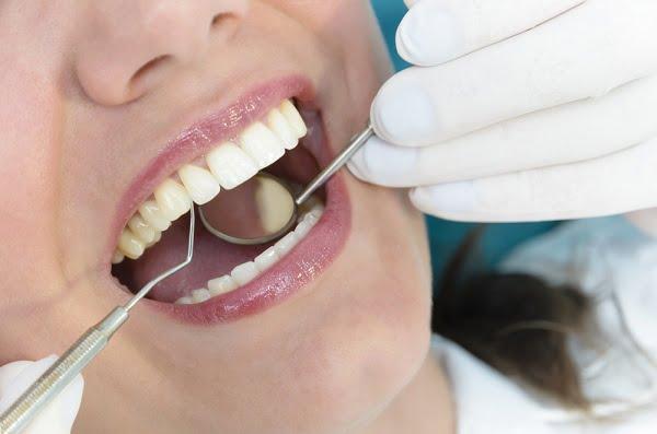 Lưu ý những trường hợp sau không nên làm răng sứ