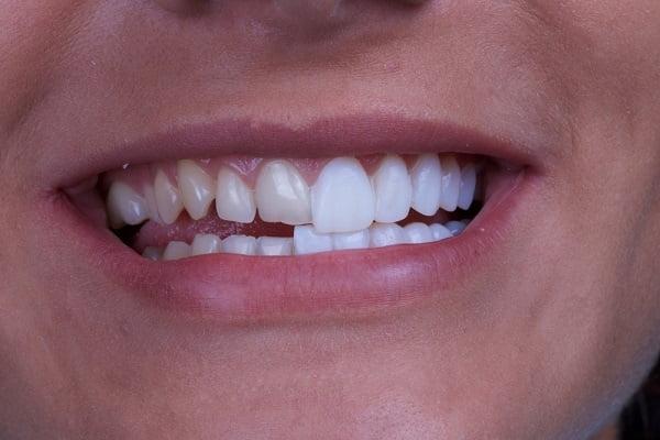 Có nên bọc răng sứ hay không?
