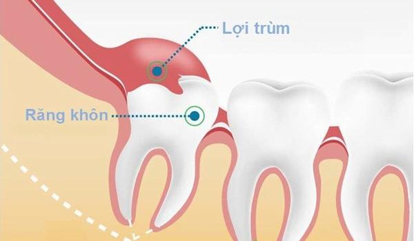 99% Trường hợp không để ý đến những biểu hiện mọc răng khôn này