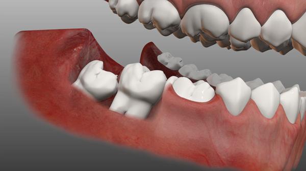 Biểu hiện răng khôn mọc lệch chính xác 100%