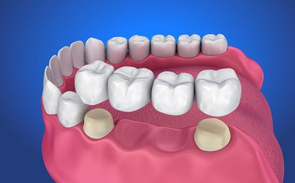 Nhổ răng sau bao lâu trồng được?