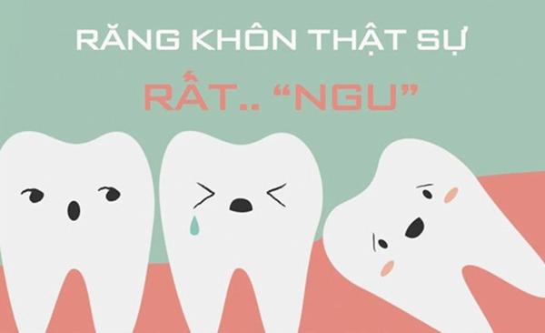Những biến chứng khi nhổ răng khôn nguy hiểm thế nào?
