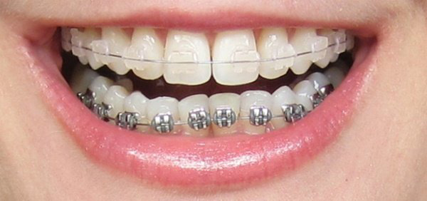 Có thể niềng răng mắc cài sứ 1 hàm được không?