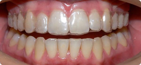 Mua hàm nhựa chỉnh răng ở đâu thì đảm bảo nhất