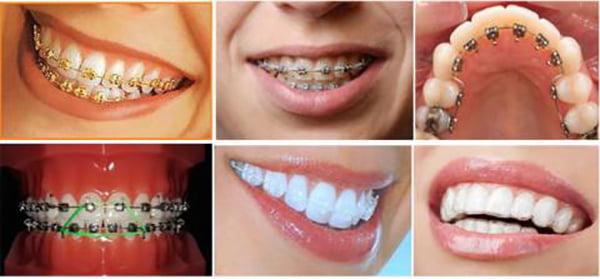 Nên niềng răng chi phí bao nhiêu? Câu trả lời chính xác nhất là…