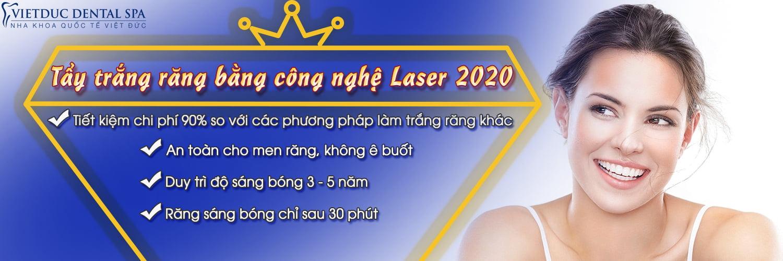 Tẩy trắng bằng laser