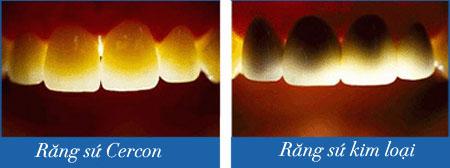 Răng sứ cercon 1