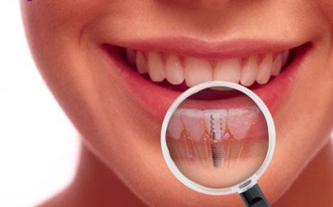 Những câu hỏi thường gặp khi trồng răng implant 2