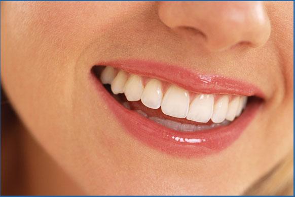 Những điều cần biết về trồng răng implant 1