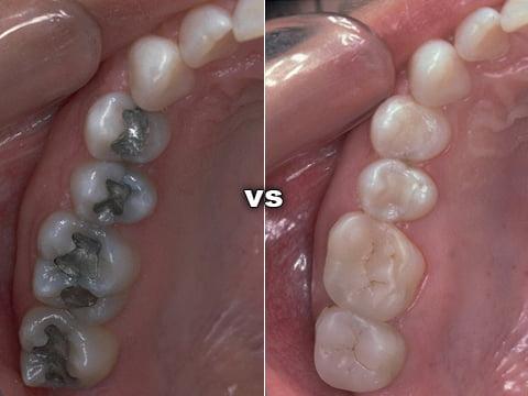 Trám răng thẩm mỹ – Những Câu Hỏi Thường Gặp