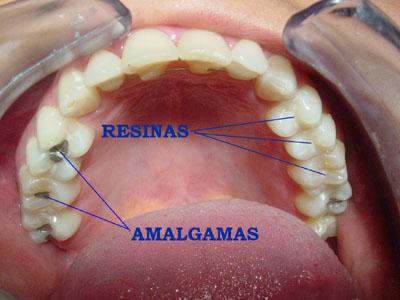 Trám răng bằng sứ - 1
