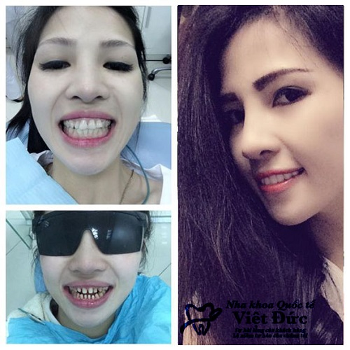 Thẩm mỹ răng