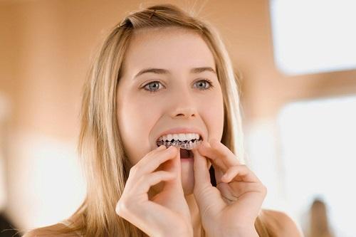 Hậu quả khi niềng răng không thành công là gì?
