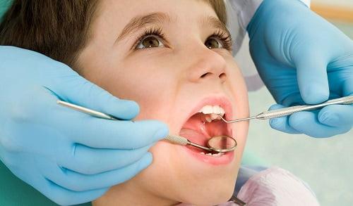Lựa chọn loại mắc cài phù hợp khi niềng răng trẻ em