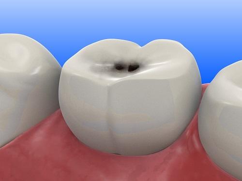 Cách điều trị răng sâu hiệu quả