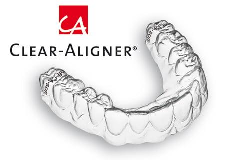 Niềng răng Clear Aligner có gì đặc biệt?