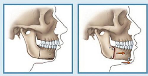 Phẫu thuật chỉnh răng hô hàm trên hiệu quả