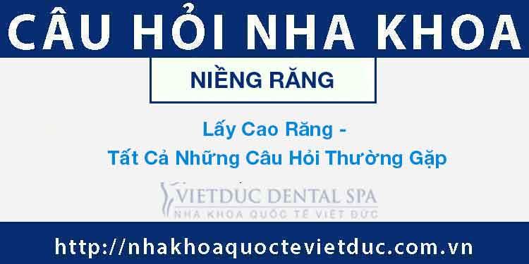 Lấy Cao Răng – Tất Cả Những Câu Hỏi Thường Gặp