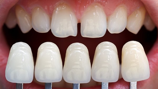 """Mặt dán sứ veneer – sự """"cám dỗ"""" của hàm răng đẹp không tì vết"""