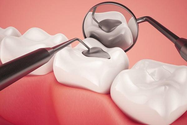 Cách chữa răng sâu đen cực đơn giản, nhanh chóng