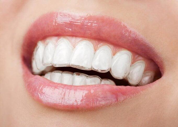 niềng răng 3d sử dụng khay niềng răng trong suốt