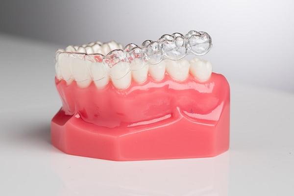 Niềng răng 3d clear hàm dưới có nên không