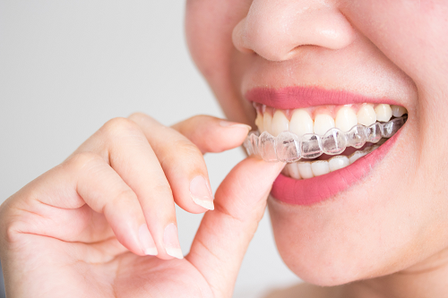Chi phí niềng răng 3d hàm dưới thấp