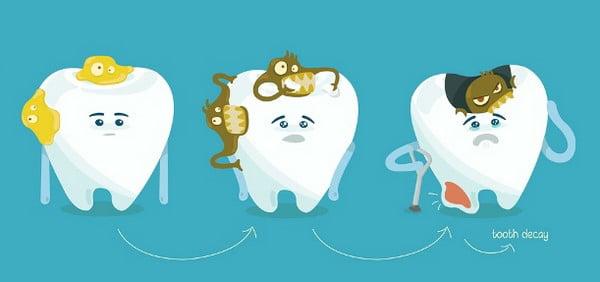 Răng sâu độ 3 có còn chữa được không hay phải nhổ?